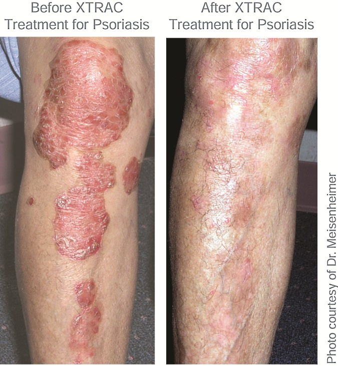 7 The Koebner phenomenon describes active inflammatory psoriasis where new lesions develop at sites of trauma and pressure 1