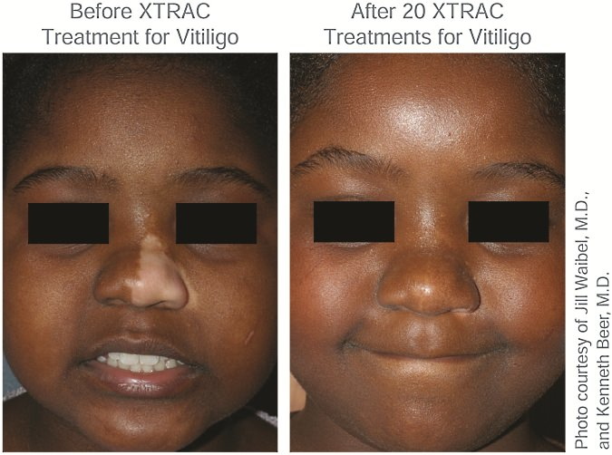 Before XTRAC Treatment and After XTRAC Treatment for Vitiligo Child