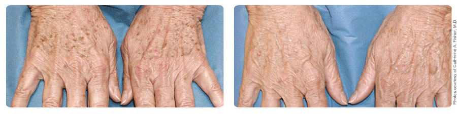 Before and After Treatment of Hands