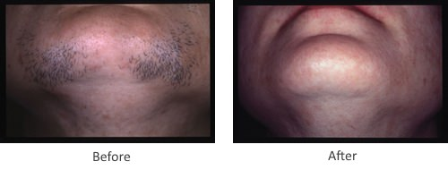 Before and After Laser Hair Removal Treatment for chin