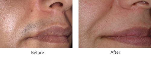 Before and After Laser Hair Removal Treatment for upper lip