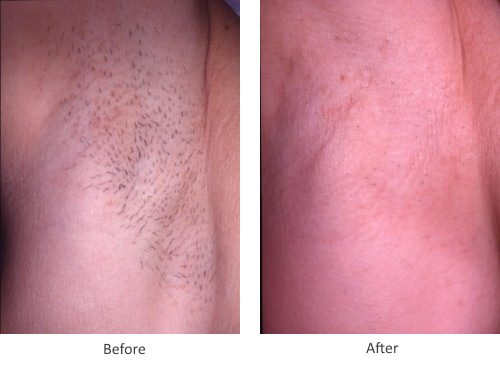 Before and After Laser Hair Removal Treatment for under arm