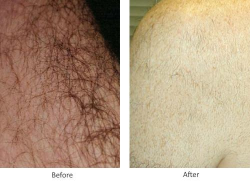 Before and After Laser Hair Removal Treatment for back