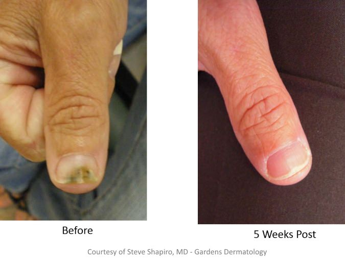 Before and After Treatment for nail fungus
